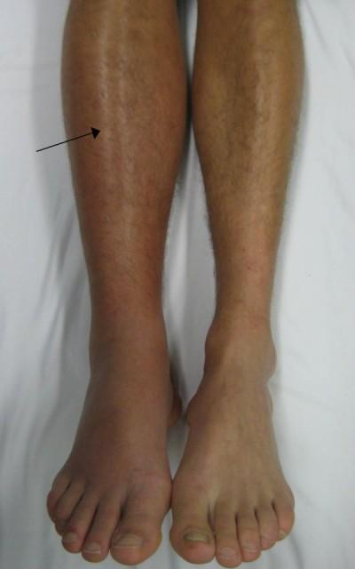 Deep_vein_thrombosis_of_the_right_leg