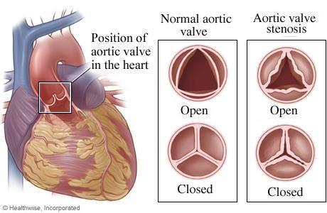 Aortic-Stenosis